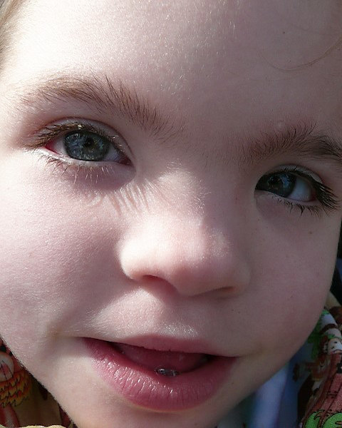 Facial Phenotypes – Kleefstra syndrome